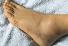 Photo of What could be causing your swollen ankles